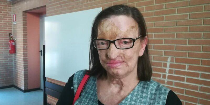 Filomena Lamberti sfigurata dal marito con l'acido